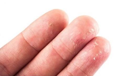 Parmak Uçlarında Deri Soyulması Nedenleri Ve Tedavisi Nelerdir?